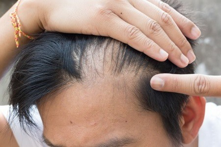 Role of Vitamin in hair growth