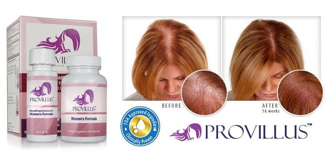 Provillus for Women Review