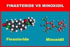 Finasteride Vs Minoxidil