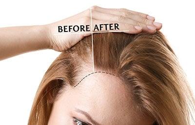 Grow hair faster women